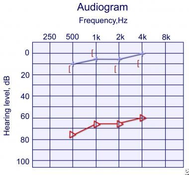 Audiogram of a 5-year-old girl with right unilater