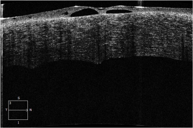 Ocular coherence tomography (OCT) image of a patie