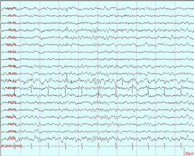 Small sharp spike is present in left temporal regi
