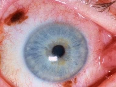 Conjunctival melanoma. Courtesy of Peter Rubin, MD