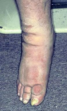 Pretibial myxedema and thyroid acropachy.