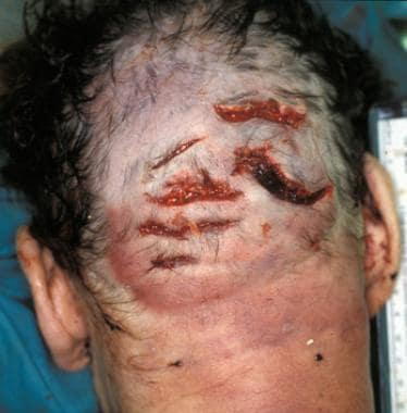 Lacerations of the occipital scalp in a 78-year-ol