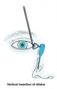 Insertion of punctal dilator.
