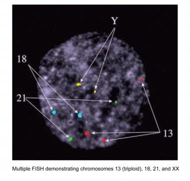 Multiple fluorescence in situ hybridization demons
