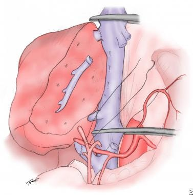Drawing of an orthotopic liver transplant and the