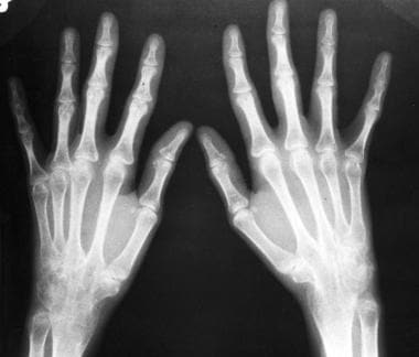 Posteroanterior radiograph of the hands shows wris