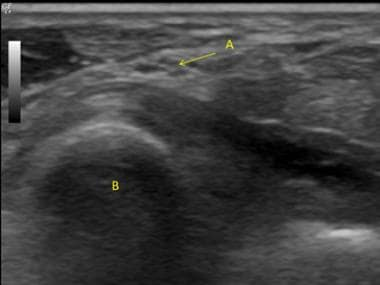 Ultrasound Guided nerve block at the elbow. A. Uln