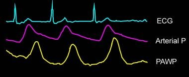 Timing of the pulmonary artery waveforms in relati