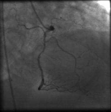Angiography of the right coronary artery demonstra