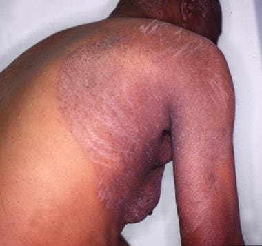 Large, erythematous, scaly plaque.