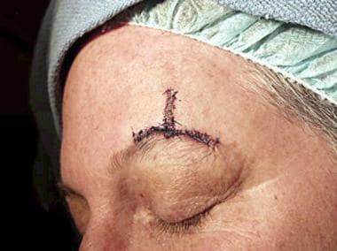 This patient had a defect above the left eyebrow f