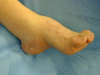 Cavovarus deformity with high-arched foot. Note ha