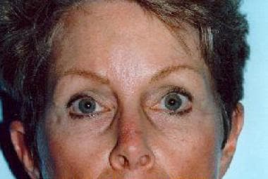 Postoperative photo 2 years after endoscopic brow