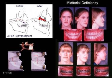 Illustration of maxillary deficiency with relative