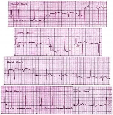Electrocardiogram of asymptomatic 17-year-old male