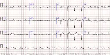 This electrocardiogram shows an extensive acute/ev