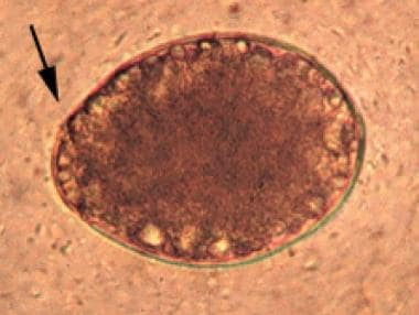 Egg of Diphyllobothrium latum with arrow pointing