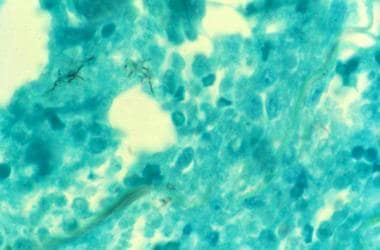 Photomicrograph of tissue biopsy stained with Gomo