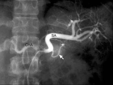 Celiac axis angiography illustrating neoplasms of