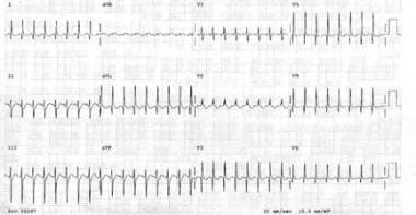 Preoperative electrocardiogram in a 2-month-old in