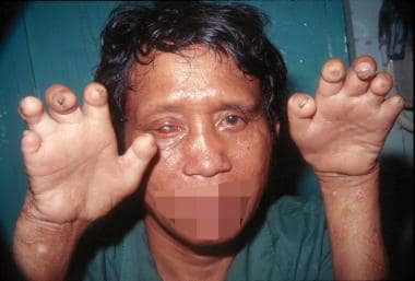 Man with advanced deformities caused by unmanaged