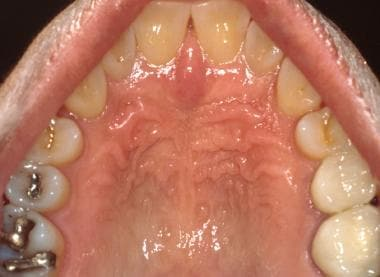 The hard palatal mucosa is characterized by kerati