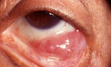 Salmon-pink appearance of conjunctival lymphoma.