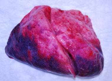 The lung is dark purple in the posterior dependent
