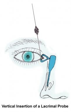 Insertion of lacrimal probe.