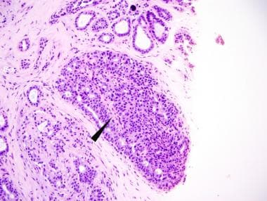 Pathology of small, peripheral intraductal papillo