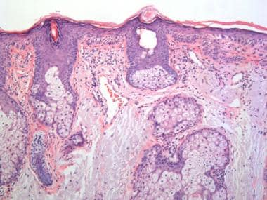 Actinic Keratosis Pathology: Overview, Etiology, Clinical