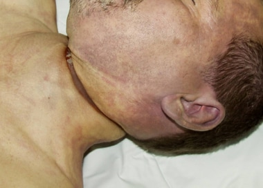 Facial and upper neck edema.