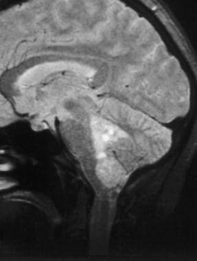 Case 4a. Ependymoma arising from the fourth ventri