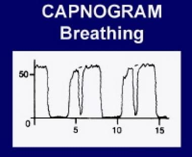 Capnogram breathing. Courtesy Pedro Tanaka, MD.