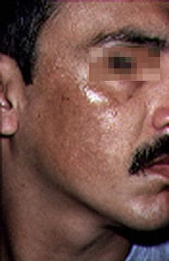 Melasma in a man.