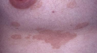 In patients with lighter skin color, lesions frequ