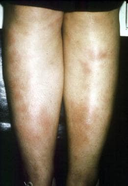 Erythema nodosa. Courtesy of Walter Reed Army Medi