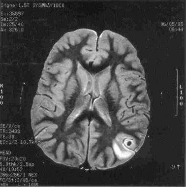 Magnetic resonance image (MRI) of the brain in a p