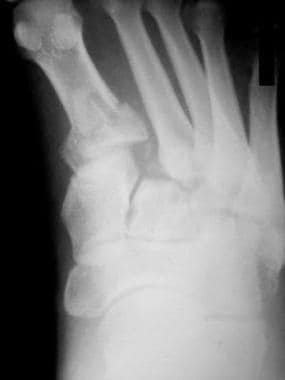 In this anteroposterior radiograph of a Lisfranc d
