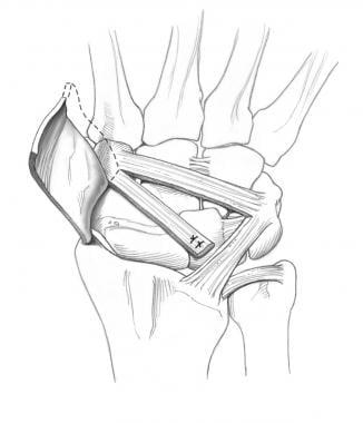 Mayo dorsal intercarpal (DIC) capsulodesis. Copyri