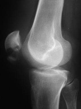 Preoperative lateral radiograph of patella fractur
