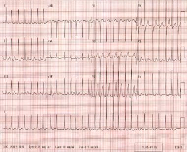 Atrial fibrillation. The patient's ventricular rat