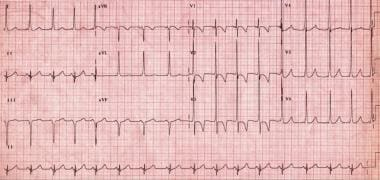 12-lead electrocardiogram from asymptomatic 7-year