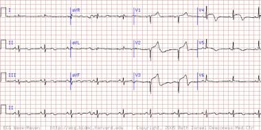 This electrocardiogram shows a patient is having a