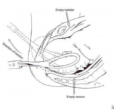 An illustration of a forceps delivery technique.