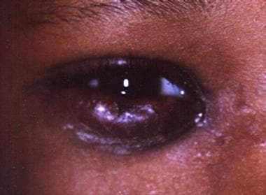 Periorbital cellulitis. This image shows an 8-year
