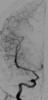 Cerebral angiogram obtained on posthemorrhage day