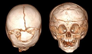 Metopic craniosynostosis repair. 3D rendering of s
