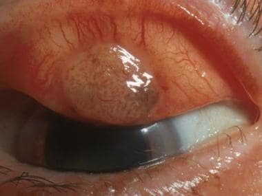 Tarsal conjunctival melanoma. Courtesy of Peter Ru