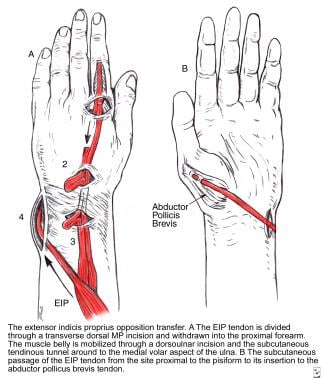 Opposition tendon transfer using the extensor indi